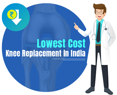 Lowest Cost Knee Replacement in India